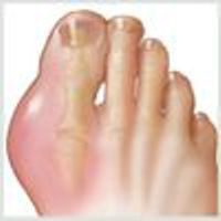 Find out how Gout-Relief can stop the pain associated to gout.