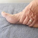 How to control gout